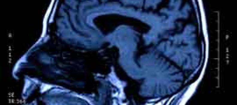 Epstein-Barr virus oorzaak ontstekingen brein
